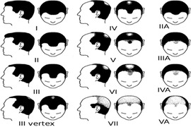 ALOPECIE HOMME CLASSIFICATION