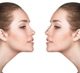 Medical rhinoplasty