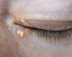Xanthelasma Removal