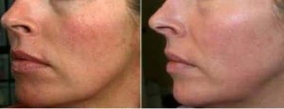 photo amelioration peau avec mesotherapie