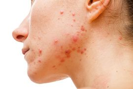 Acne skin because the disorders of sebaceous glands productions