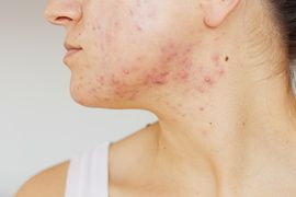 Acne on the face of young women. Improper therapy has led to a severe form of chronic inflammation face.-Image