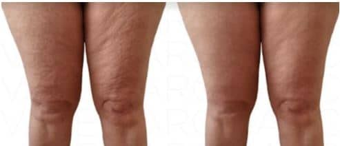 cellulite-cuisses-avant-apres