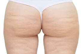 Cellulite on the buttocks and thighs. White isolate. Before and after