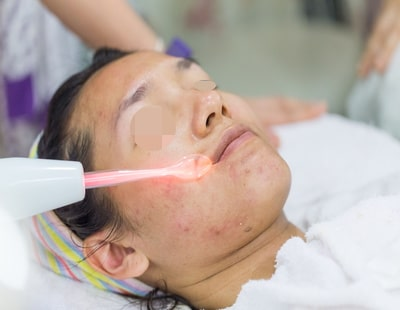 Beauty treatment of face skin with high frequency infrared spot or laser spot remover in SPA center.