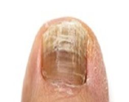 Laser Nail Fungal Treatment