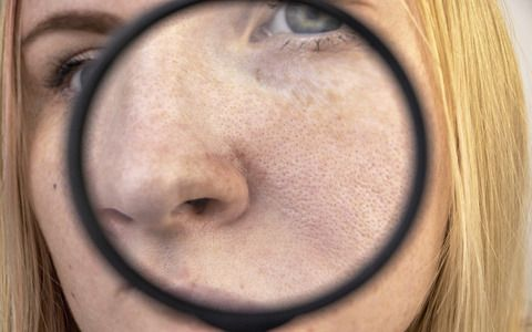 Expanded pores, black spots, acne, rosacea close-up on the nose. A woman is being examined by a doctor. Dermatologist examines the skin through a magnifier, a magnifying glass