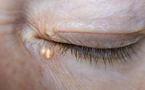 Close up of woman eyes with Xanthelasma on the eyelids. Hypercholesterolemia, high cholesterol